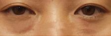 内切去眼袋-从沮丧疲惫的表情到焕然一新的容颜