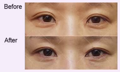 眼部修复术-通过精确的诊断和程序设计出美丽的眼睛