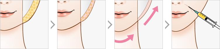三重提升术-Accuculpt线整容和自动整形同时进行