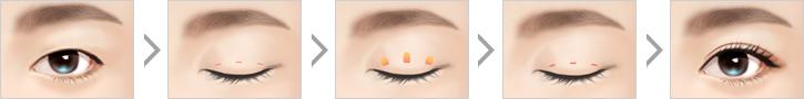 双眼皮手术-想要自然好看的双眼皮吗?