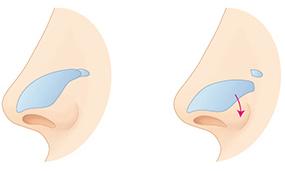 短鼻朝天鼻矫正-鼻子是你脸的中心为你脸创造美丽黄金比例
