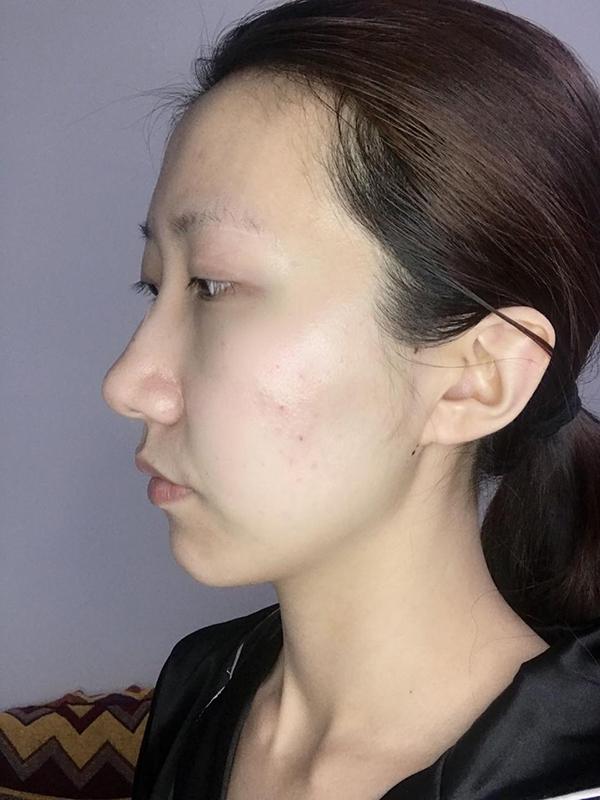 北京玉泉医院纪柳医生面部埋线提升案例