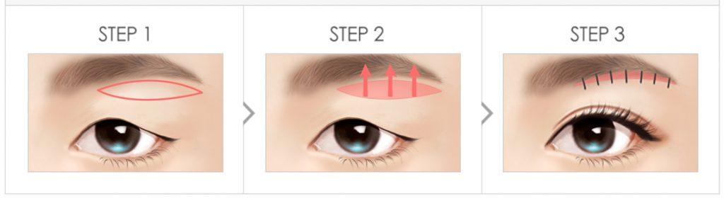 提眉术-去除下垂脂肪和皱纹恢复弹性焕然一新的眼形