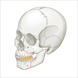 双鄂手术-同时改善功能和美观部分