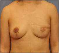 乳房再造术-恢复女性气质改善生活质量