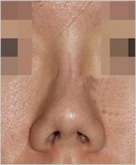 鼻子修复手术-塑造自然挺拔精致美鼻