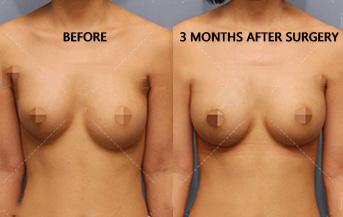 隆胸修复术-重塑自然丰满对称的美丽乳房