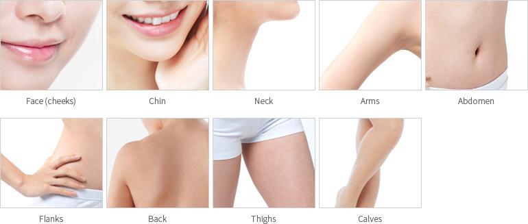 吸脂术-包括抽出堆积多余脂肪改善肥胖塑造苗条玲珑身材