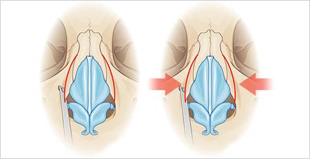 宽鼻缩窄-瘦身鼻梁的宽度改善鼻子与其他面部特征的平衡