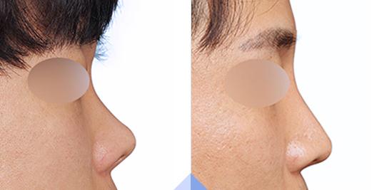 男士鼻整形-打造男人立体挺拔鼻型