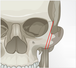 颧骨整形-想象自己从任何角度都有一个光滑美丽的脸型