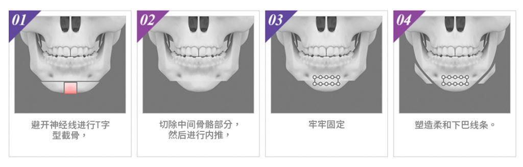 小V脸手术-v型线手术成功的关键是创造一张漂亮的v型脸
