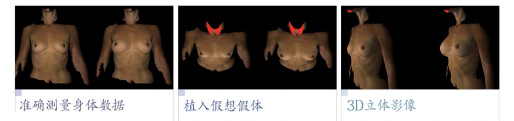 全高清内窥镜假体隆胸术-安全个性化的内窥镜隆乳术