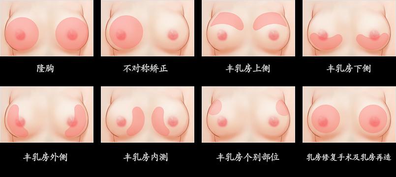 干细胞脂肪隆胸术-细胞再生隆乳术