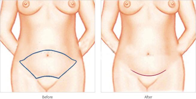 腹壁整形术-腹壁整形摆脱大肚子打造平坦腹部