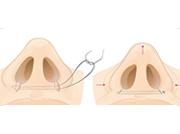鼻头鼻翼缩小-塑造精致秀气美鼻
