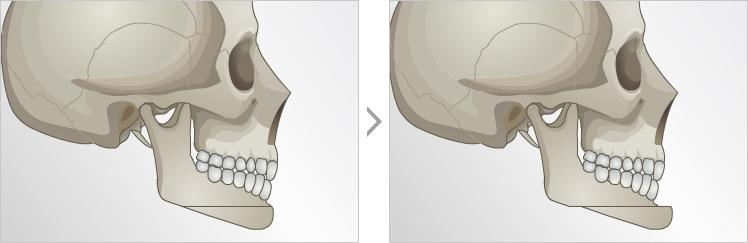 下巴截骨前移术-使面部线条更美观比例更匀称