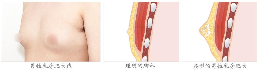男性乳房肥大矫正术-去除不必要的脂肪组织和乳腺腺体组织