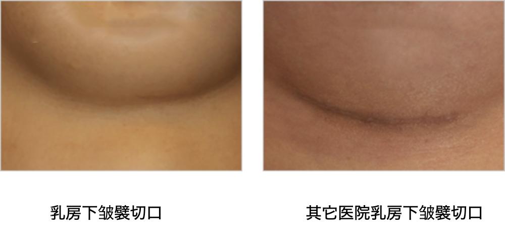 假体脂肪复合式隆胸-带给你美丽的乳沟自然的形状和柔软的质感