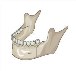 反颌矫正手术-改善颌功能问题同时创造理想的面线