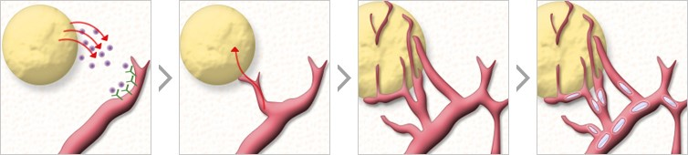自体脂肪填充-恢复年轻肌肤和面部自然轮廓