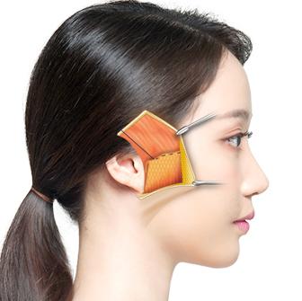 面部SMAS筋膜提升术-提升到位效果更持久