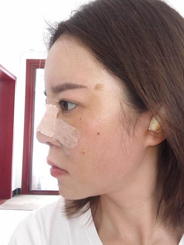 上海华美医疗美容医院徐文龙医生膨体隆鼻案例