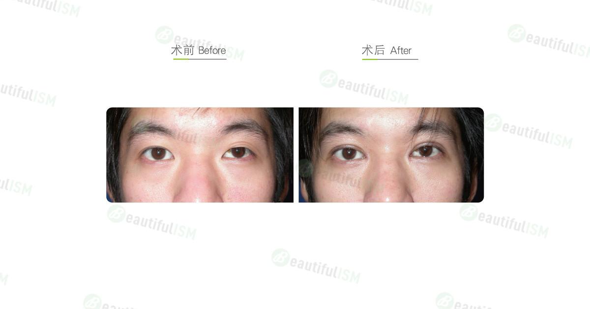 韩式微创双眼皮+开内眼角+大小眼矫正(男)效果图,案例前后对比照片