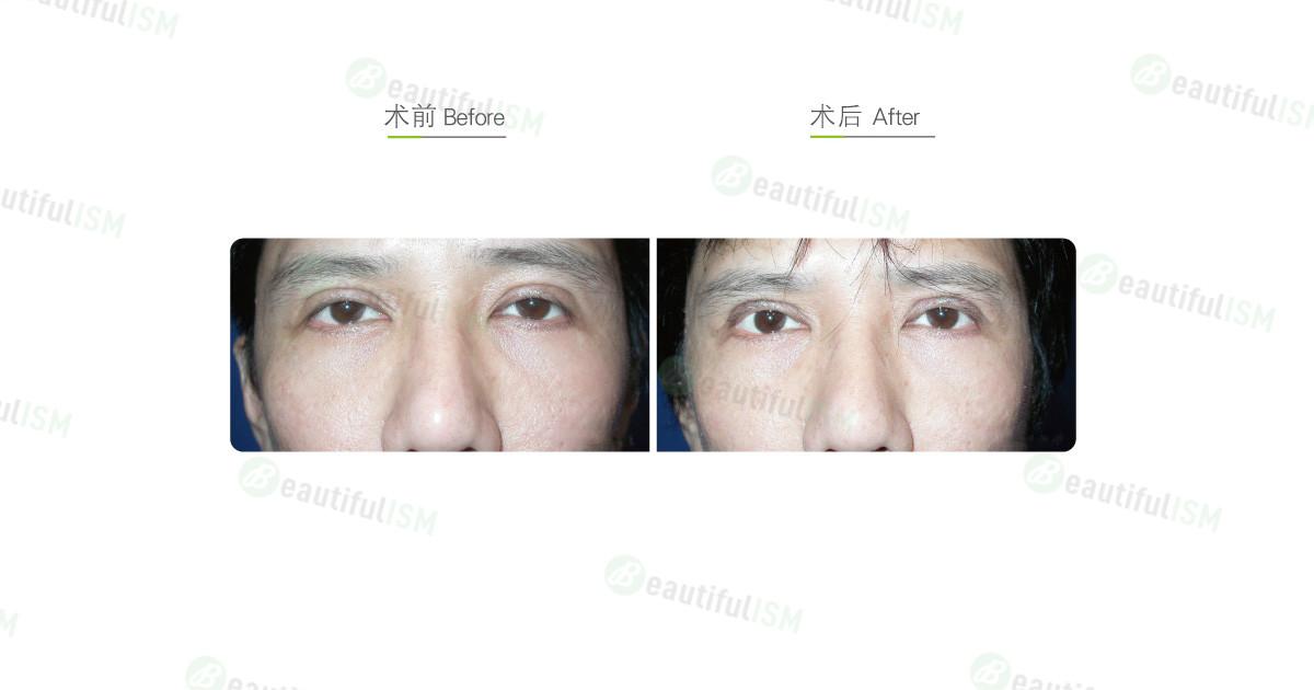 双眼皮修复(男)效果图,案例前后对比照片