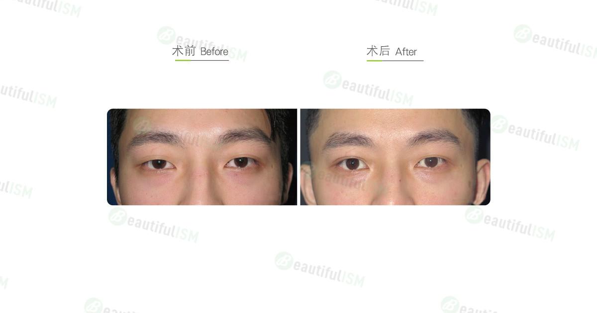埋线双眼皮(男)-单边效果图,案例前后对比照片