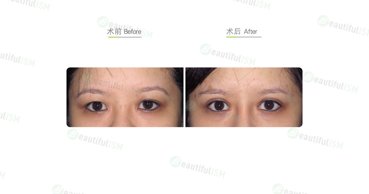 韩式微创双眼皮+大小眼矫正(女)效果图,案例前后对比照片