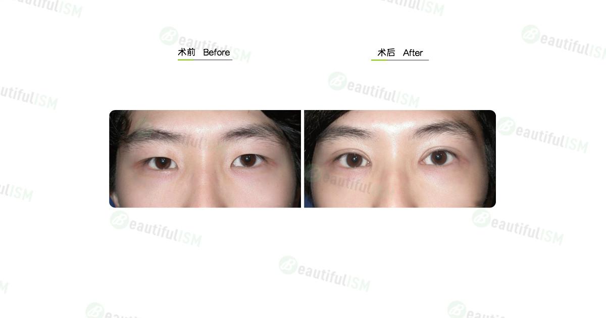 韩式微创双眼皮+开内眼角(女)效果图,案例前后对比照片
