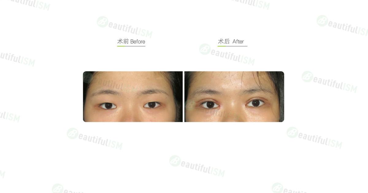 全切双眼皮(女)-术后一周效果图,案例前后对比照片