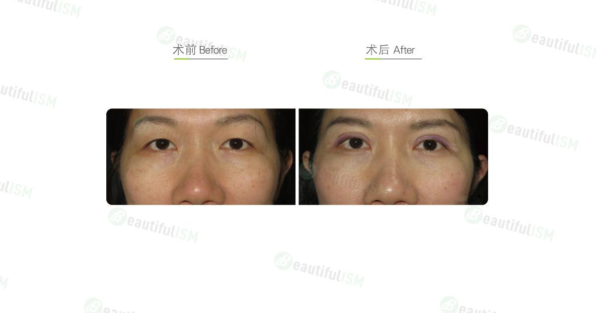 全切双眼皮(女)效果图,案例前后对比照片