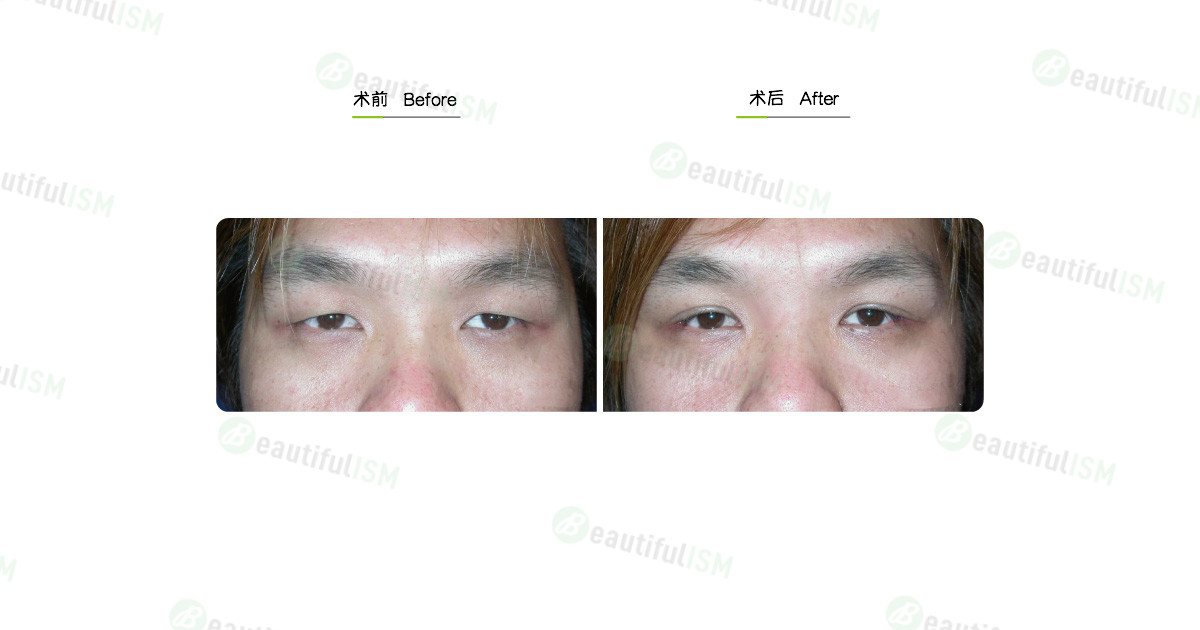 韩式微创双眼皮(男)效果图,案例前后对比照片