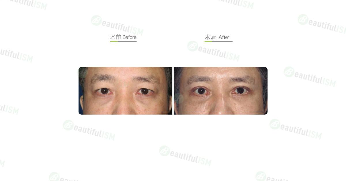 全切双眼皮+外切去眼袋(男)效果图,案例前后对比照片