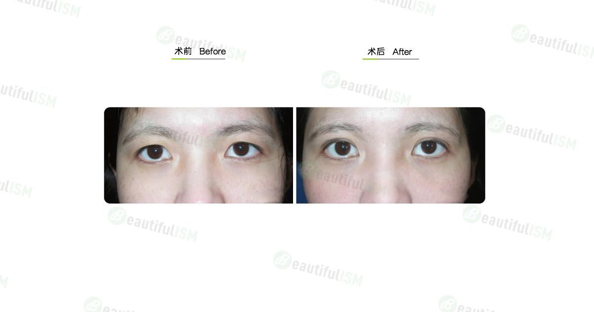 韩式微创双眼皮(女)效果图,案例前后对比照片