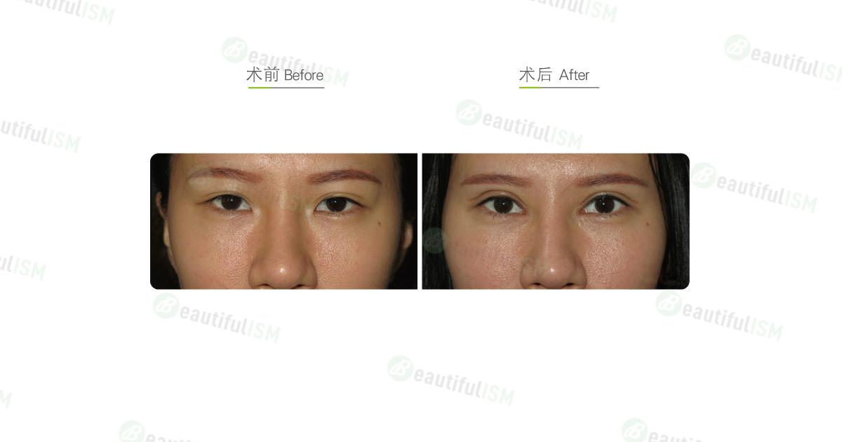 全切双眼皮+开内眼角+提眼肌放大手术效果图,案例前后对比照片