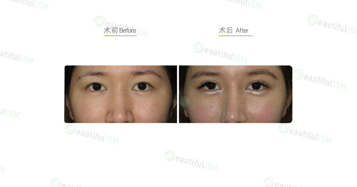 埋线双眼皮(女)效果图,案例前后对比照片