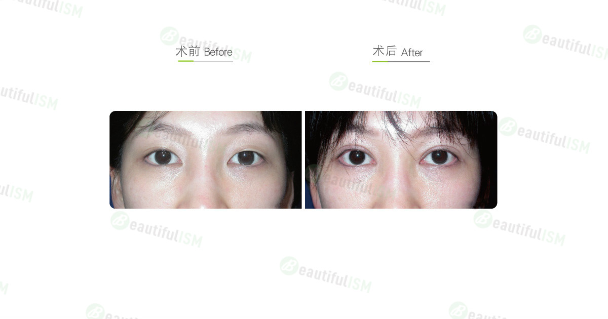 韩式微创双眼皮+提眼肌放大(女)效果图,案例前后对比照片