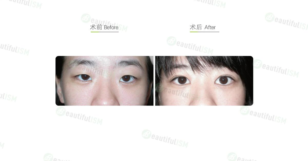 韩式三点定位双眼皮+开内眼角(女)效果图,案例前后对比照片