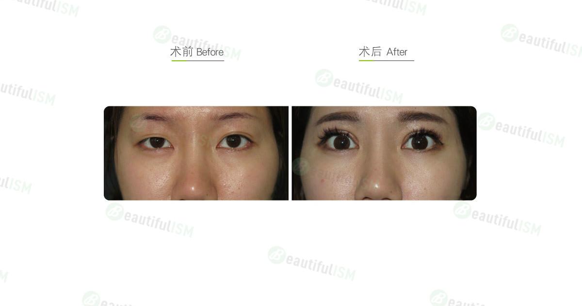 全切双眼皮+提眼肌放大+大小眼矫正手术效果图,案例前后对比照片