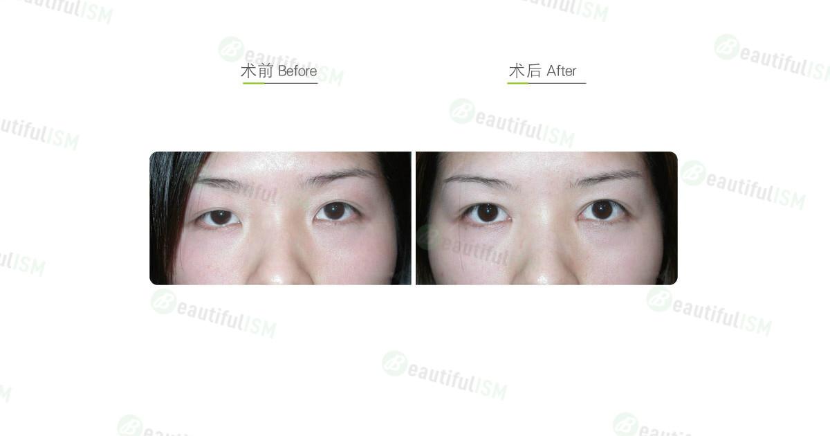 韩式微创双眼皮-外变内双手术效果图,案例前后对比照片