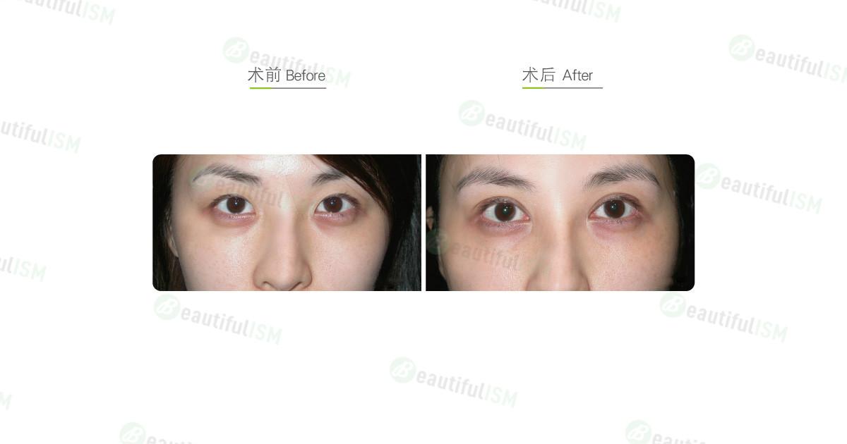 全切双眼皮+开内眼角(女)效果图,案例前后对比照片