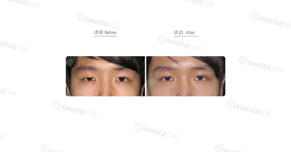 埋线双眼皮(男)效果图,案例前后对比照片