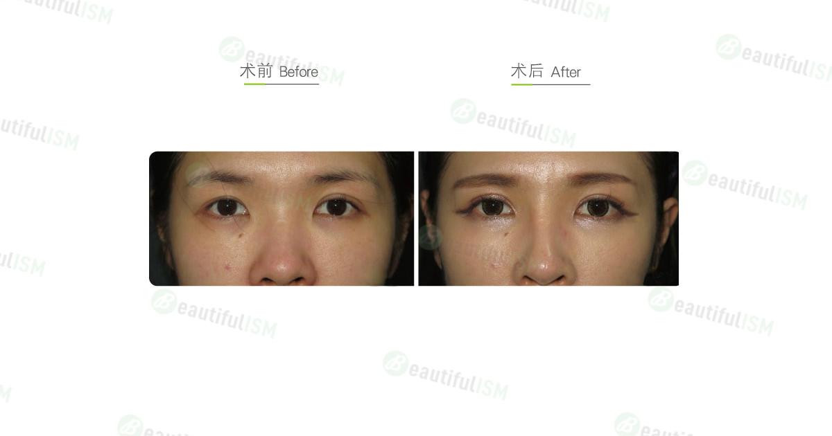 埋线双眼皮(女)-单边效果图,案例前后对比照片