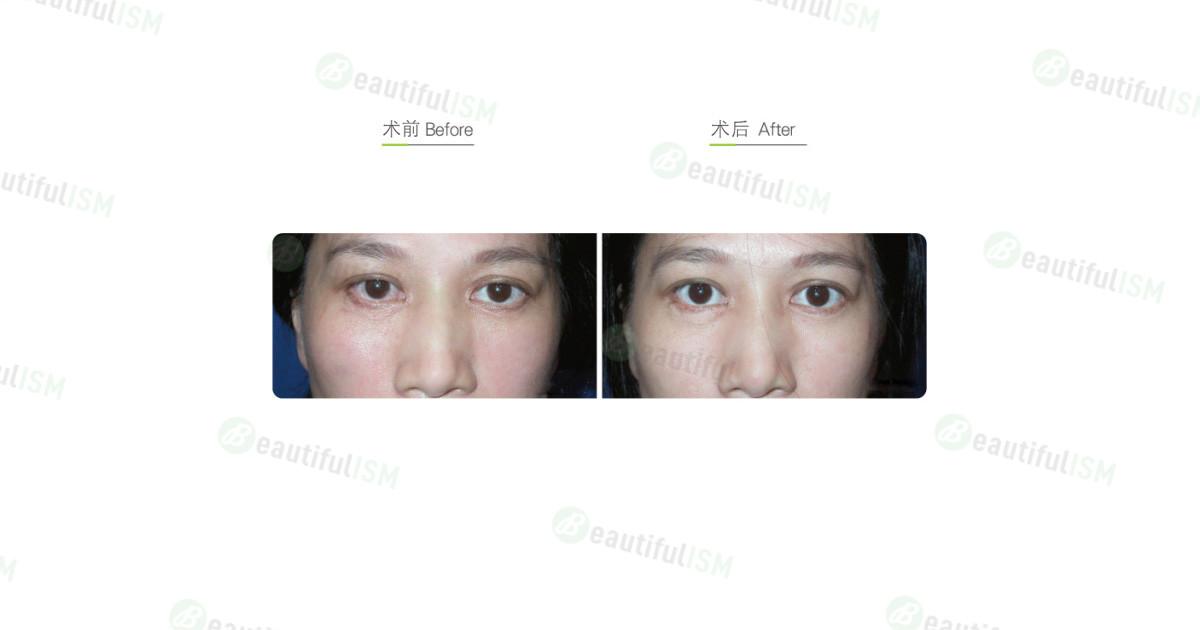 双眼皮修复(女)效果图,案例前后对比照片