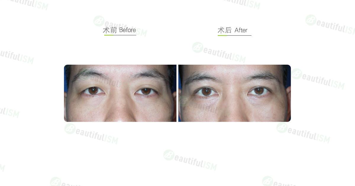 韩式微创双眼皮+大小眼矫正(男)效果图,案例前后对比照片