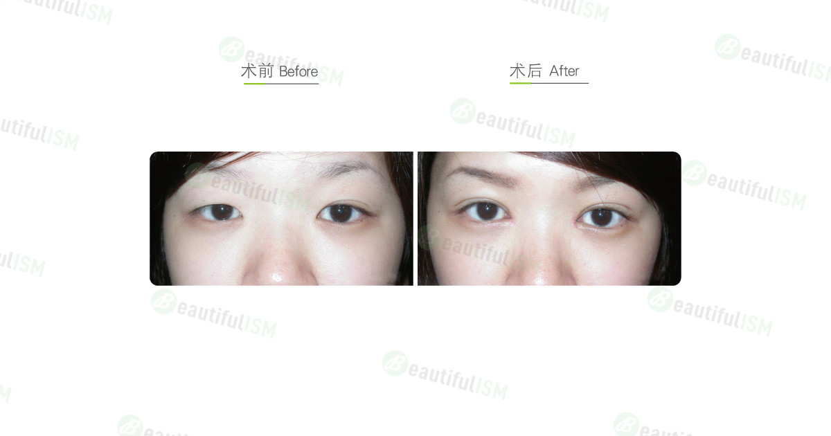 韩式微创双眼皮+开内眼角+大小眼矫正(女)效果图,案例前后对比照片