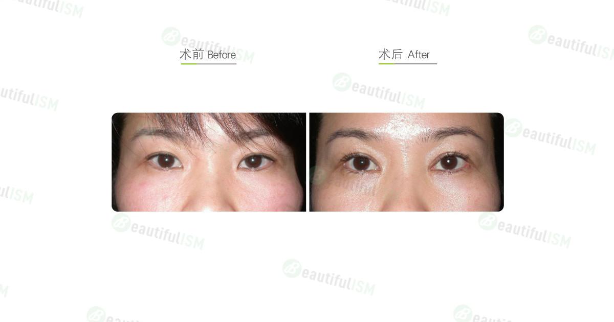 韩式微创双眼皮+开内眼角+开外眼角(女)效果图,案例前后对比照片